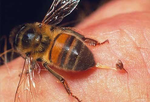 Первая помощь при укусах насекомых и